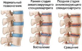 Болезнь бехтерева или анколозирующий спондилоартрит