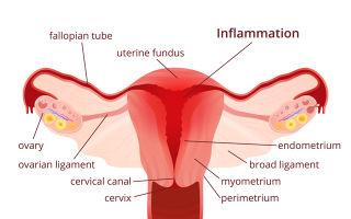 Как лечиться, когда появились симптомы эндометрита