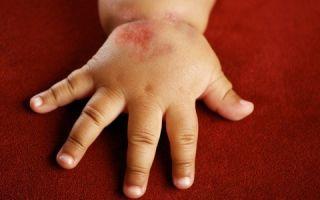 Методы профилактики атопического дерматита у детей: особенности питания, классические и народные методы профилактики