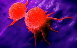 Доброкачественная опухоль: какие бывают виды