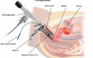 От чего и почему появляются кровянистые выделения в середине цикла