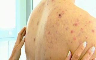 Прыщи на плечах: причины и методы лечения
