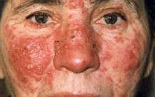 Розацеа: особенности заболевания, причины, лечение
