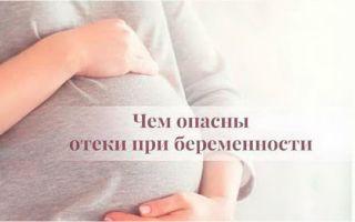 Отеки при беременности и как от них избавиться