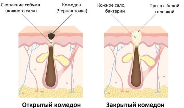 Прыщи на спине у мужчин: причины и лечение