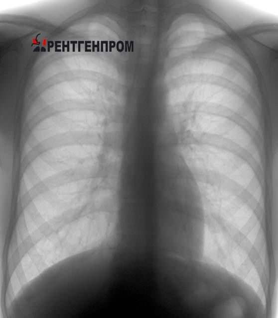 Рентгенография грудной клетки: показания и противопоказания