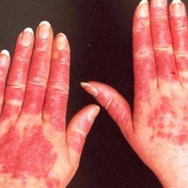 Системная красная волчанка: причины возникновения, симптомы, диагностика, методы лечения, прогнозы