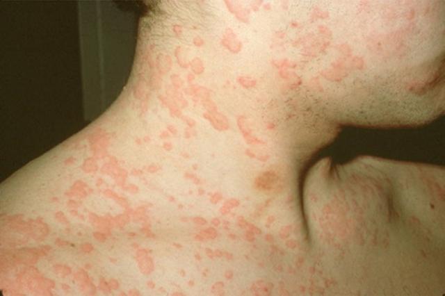 Симптомы и способы лечения аллергии на холод