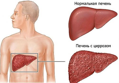 Кожные проявления при заболеваниях ЖКТ: при болезнях печени, кишечника, поджелудочной железы