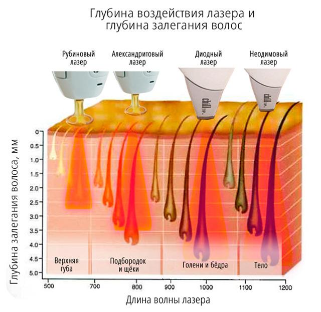 Лазерная эпиляция: противопоказания и последствия