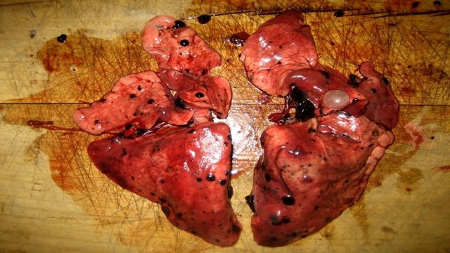 Меланома: метастазы в различные органы, виды и симптомы