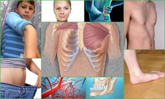 Рекомендации по обнаружению симптомов и лечению дисплазии соединительной ткани