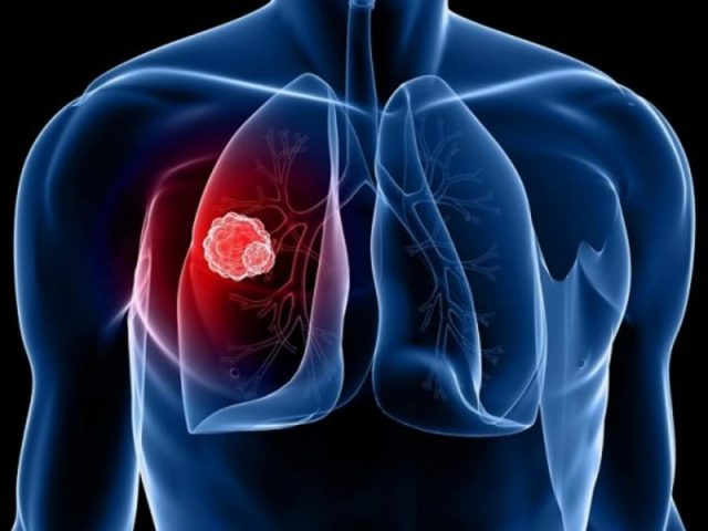 Кашель без других симптомов, причины, признаки различных видов кашля