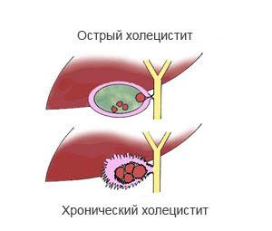 Холецистит - причины, симптомы и лечение