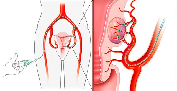 Как проводится эмболизация маточных артерий