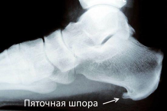 Боль в пятке при ходьбе