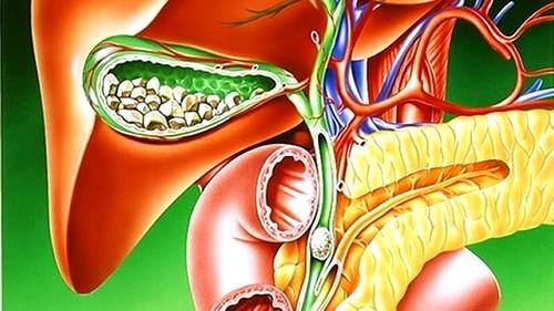 Желчекаменная болезнь: симптомы и предупреждение
