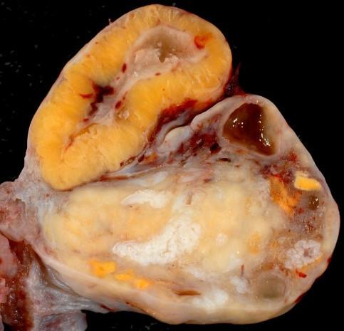 Как быть, если диагностировали кисту желтого тела яичника