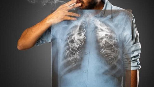 Кашель курильщика, лечение таблетками и нетрадиционной медициной