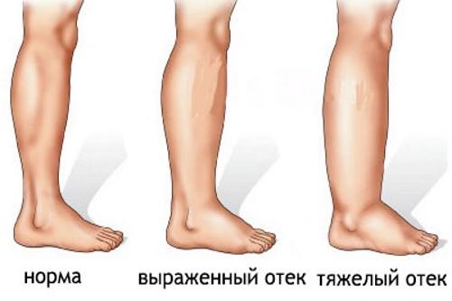 Отекают ноги у мужчин, что делать
