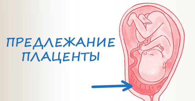 Предлежание плаценты и какие расположения плаценты бывают