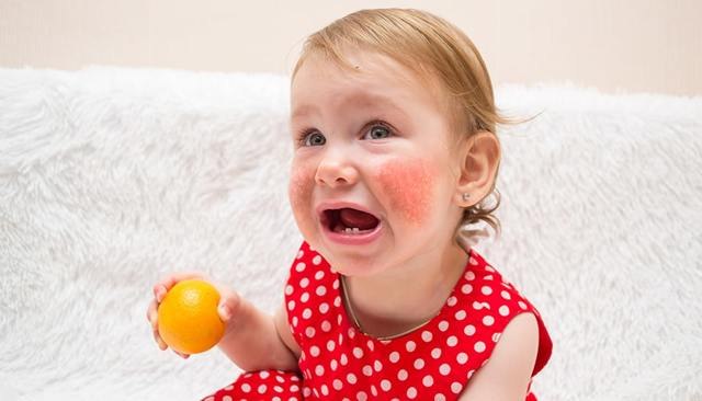 Как узнать, на что проявляется аллергия, особенности лабораторных аллергических тестов