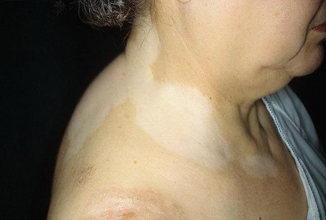 Простой белый лишай: характеристика, способы лечения и профилактики
