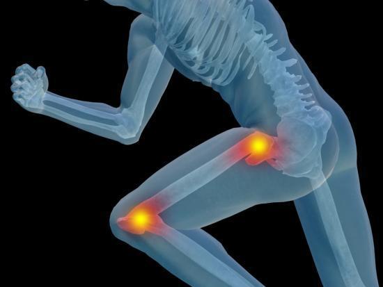 Некроз головки тазобедренного сустава: лечение, последствия