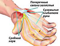 Лечение синдрома запястного канала: симптомы и решение