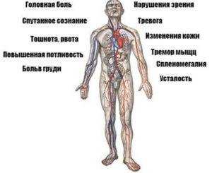 Гипертоническая болезнь: первые признаки и предупреждение