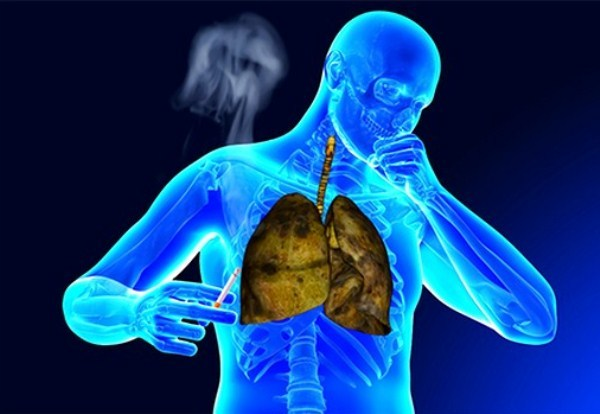 Как избавиться от кашля курильщика, эффективные методы лечения