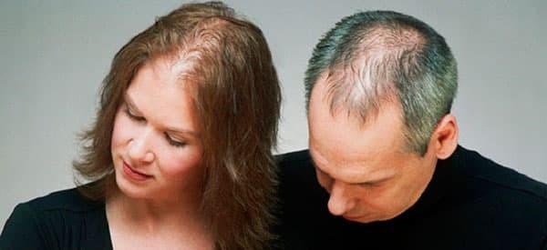 Выпадение волос причины и лечение у женщин