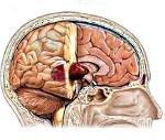 Обследование ранней стадии опухоли головного мозга