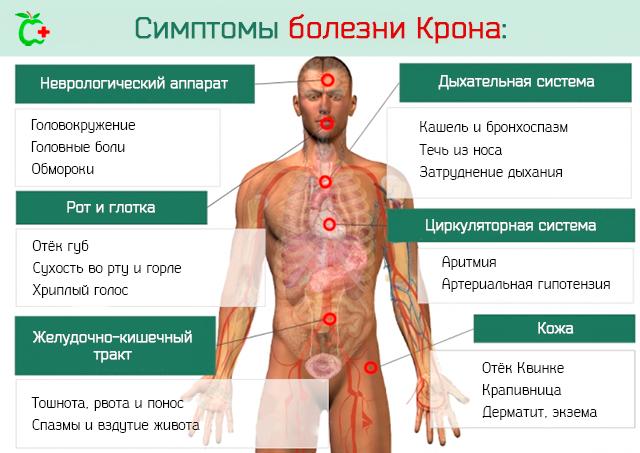 Характерные симптомы и методы лечения болезни Крона