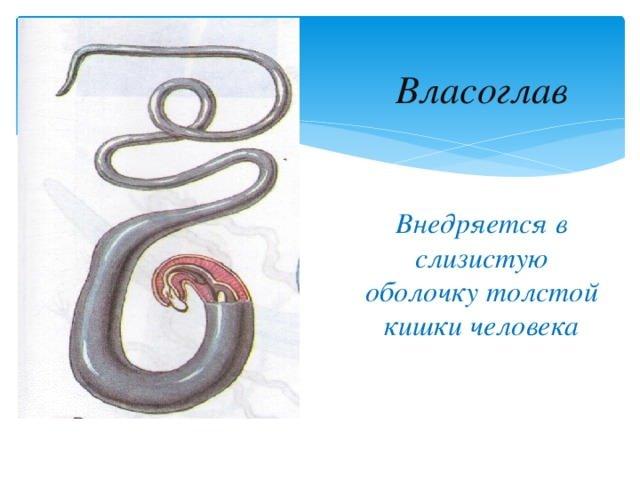 Народные средства от паразитов в организме человека