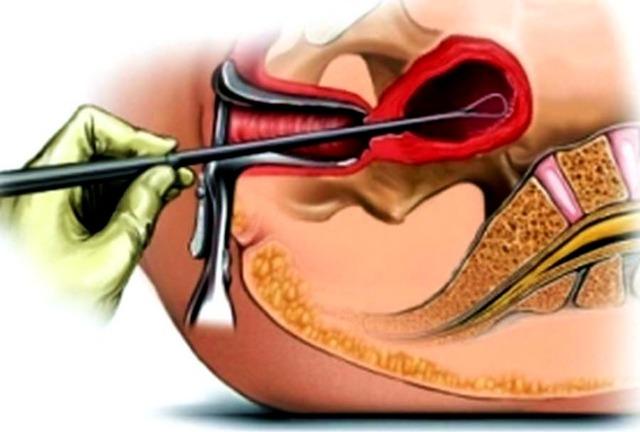 Профессиональная биопсия шейки матки при эрозии