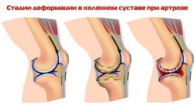 Наколенники при артрозе коленного сустава: выбор и применение