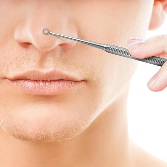 Черные точки на носу: домашние методы лечения и профилактики