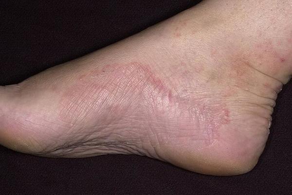 Грибок стопы: фото, симптомы, лечение