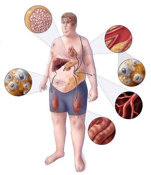 Метаболический синдром: диагностика и лечение