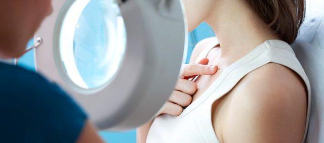 Меланома после удаления: осложнения, лечение, профилактический уход