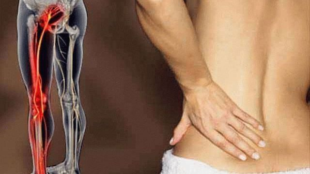 Защемление нерва в пояснице: симптомы, лечение