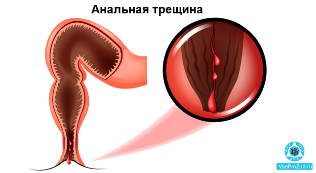 Причины зуда в заднем проходе у женщин и его лечение