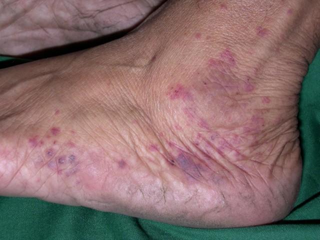 Геморрагический васкулит - симптомы, фото и лечение