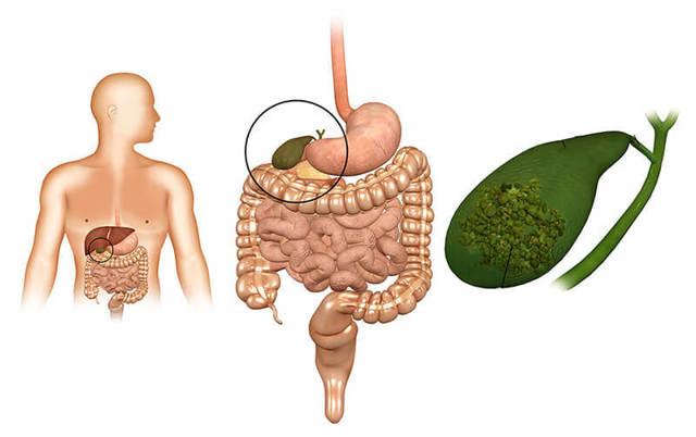 Желчный пузырь — заболевания и симптомы