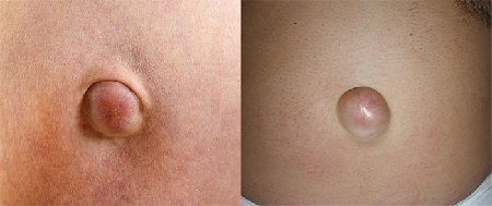 Пупочная грыжа у взрослых: симптомы и лечение