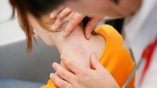 Псориаз: причины возникновения, методы диагностики и лечения