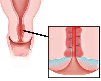 Профилактика, лечение и симптомы цевицита и эндоцевицит шейки матки