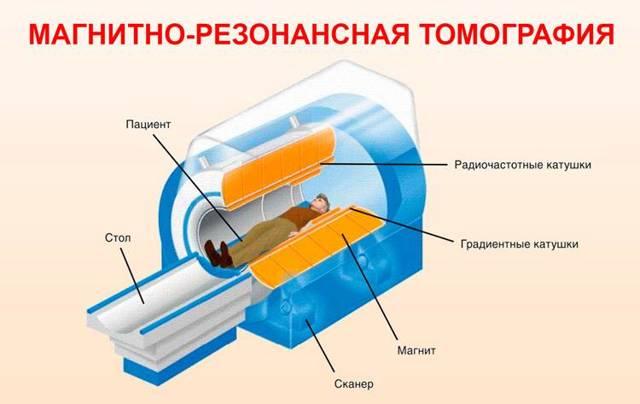 Рентген грудной клетки норма