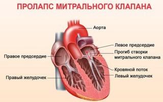 Симптомы и лечение пролапса митрального клапана